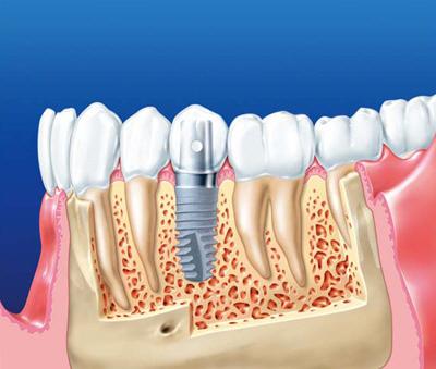 Системы имплантации зубов