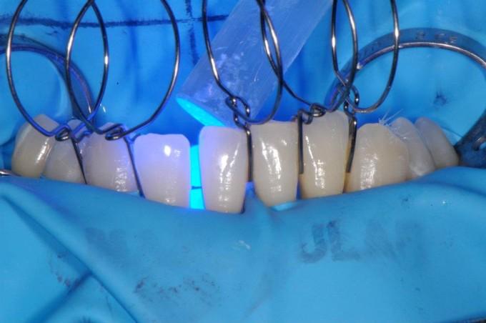 Шинирование зубів