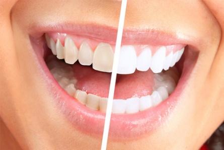 Отбеливание зубов в- infozubyru