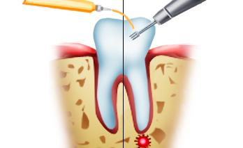 Гемисекция зубов