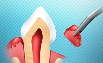 Пародонтальная хирургия