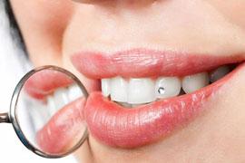Скайсы. Украшения для зубов