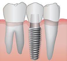 Установка зубного импланта Днепропетровск